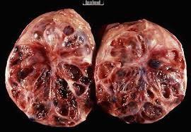 August: Granulosa Cell Tumors & Aggressive Behaviours